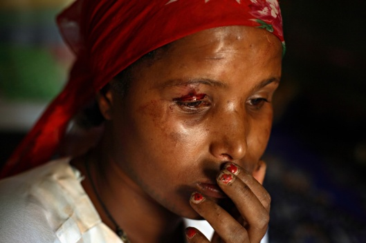 A young prostitute named China sits stunned after being beat up by a man visiting Kabele Five in Bahir Dar, Ethiopia. Many of the girls running away from child marriages end up trafficked to brothels. Photo © Stephanie Sinclair / VII